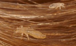 Facts You Need to Know About Head Lice Infestation