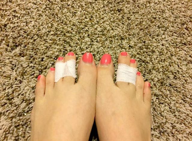 Women Now Tape Their Middle Toes Together, And You'll Want To See The Reason Why