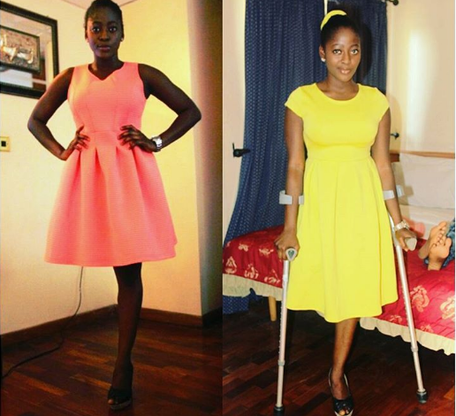 She Lost Her Leg 7 Years Ago But it Didn't Deter Her From Her Big Dreams